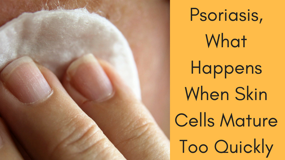 Psoriasis, What Happens When Skin Cells Mature Too Quickly